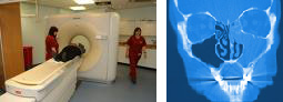 CT scans and sinus surgery